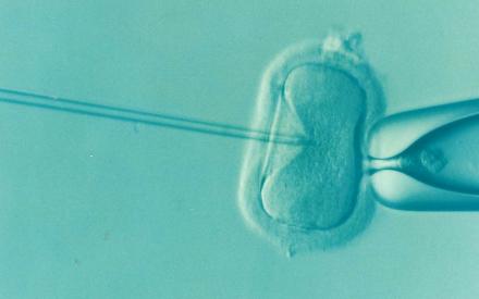 Congelamento de óvulos é opção para mulheres com câncer de mama | Amigas e Mães
